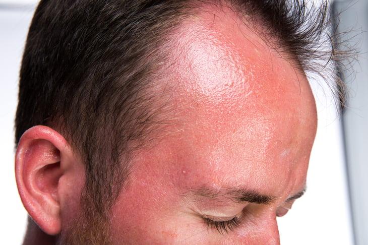 Man's sunburned head