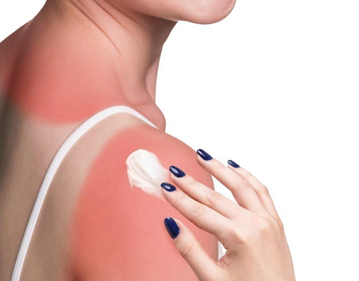 Woman putting cream on burned shoulder