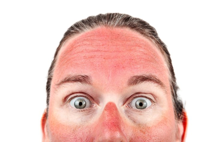Top half of a sunburned face, with white rings around the eyes.